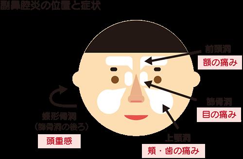 蓄膿 歯 が 痛い